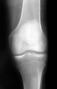 knee-x-ray-1-391480-m.jpg
